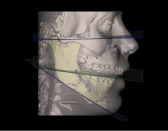 Escáner post-operatorio