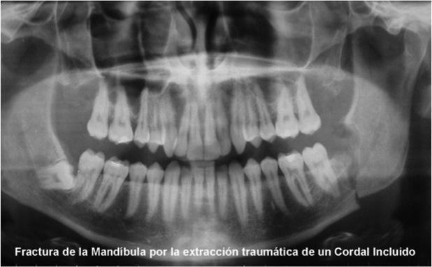Fractura de la Mandíbula por la extracción traumática de un Cordal Incluido
