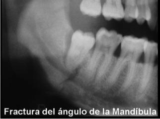 Fractura del ángulo de la mandíbula