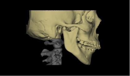 Planificación de la intervención sobre Escáner 3D
